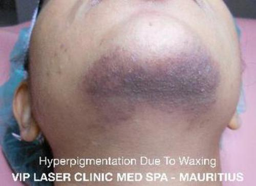 HYPERPIGMENTATION CAUSED BY WAXING