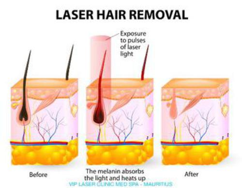How does SHR Laser Hair Reduction work?