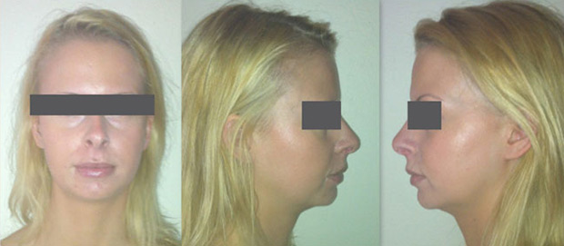 After one Microdermabrasion treatment